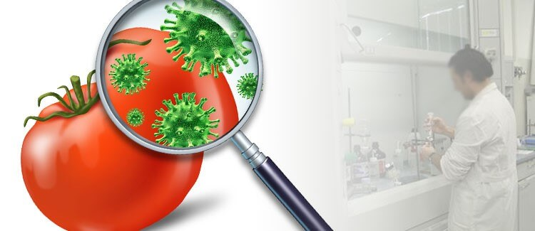Analisi microbiologiche alimenti, superfici ed acque potabili